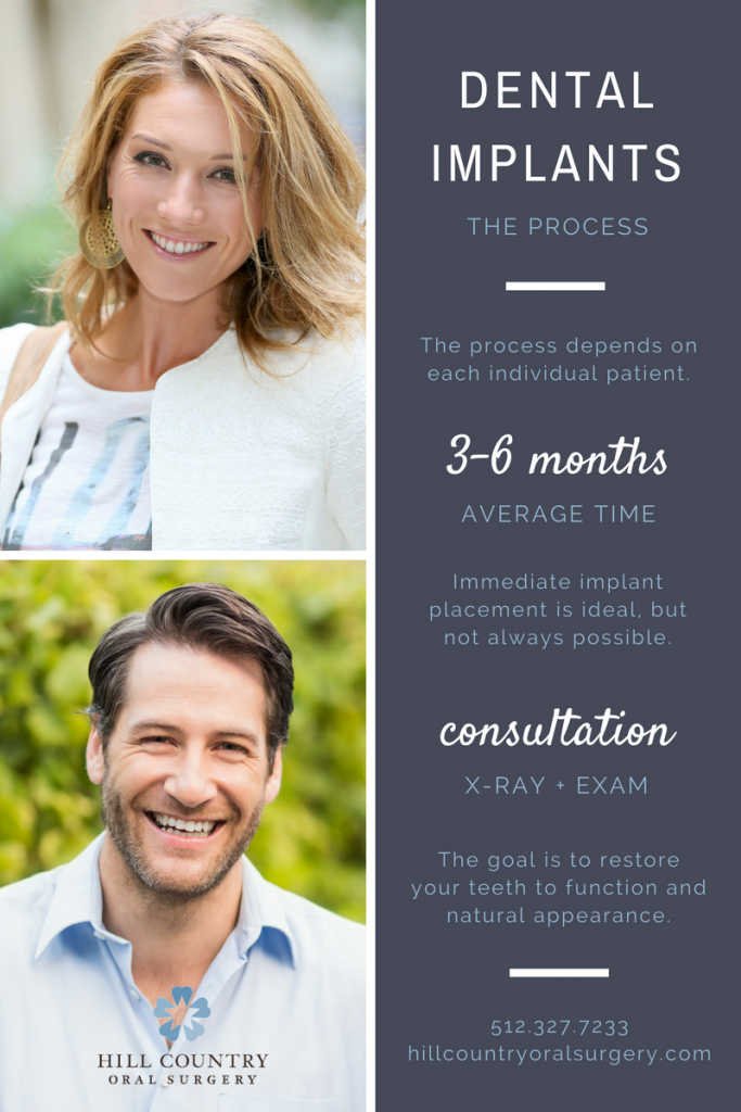 Dental Implant Process Infographic